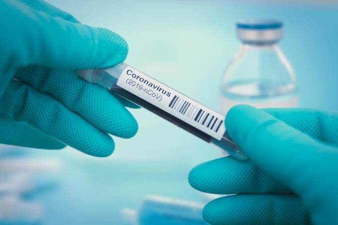 coronavirus-teste-rapido-teste-anticorpos-1586297392385-v2-1920x1280_33101
